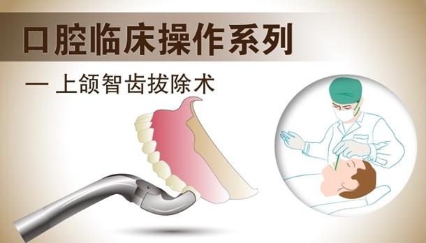 图片 上颌智齿拔除术