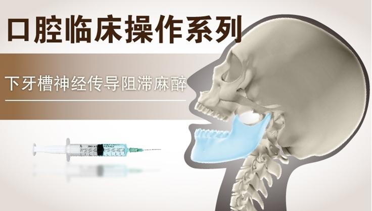 图片 下牙槽神经传导阻滞麻醉