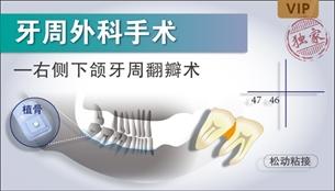 图片 右侧上下颌牙周翻瓣术