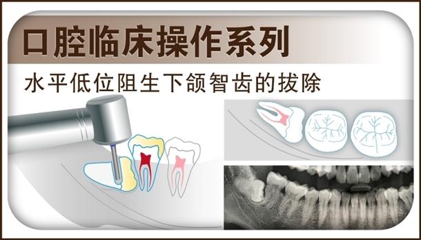 图片 水平低位阻生下颌智齿的拔除