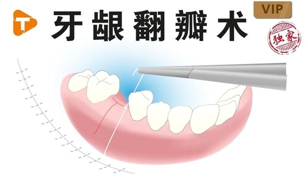 图片 牙龈翻瓣术